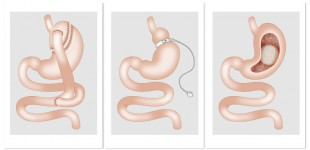 Lydia Keßner medizinische Vektor-Illustrationen